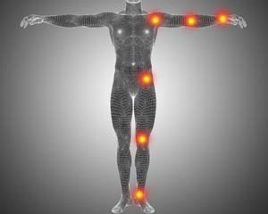 Arthritis und Gelenkschmerzen