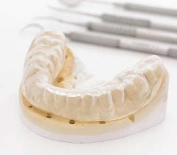 Zähneknirschen mit Botox therapieren
