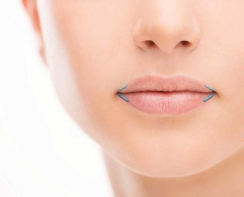 Mundwinkel der Lippen anheben
