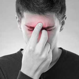 Nasennebenhölenentzündung