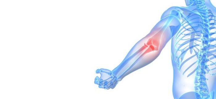 Behandlung des Tennisarm